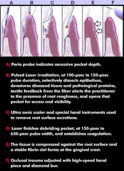 Dr Robert D Glassgow Laser Periodontal Treatment