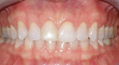 Dr Robert D Glassgow Laser Periodontal Treatment